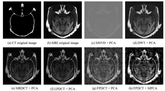Figure 2: Visual evaluation of the fusion of MRI and CT Medical Images using (a) CT original Image (b) MRI original image (c) MSVD+PCA (d) DWT+PCA (e) MRDCT+PCA (f) LPDCT+PCA (g) FPDCT+PCA and (h) FPDCT+MPCA.