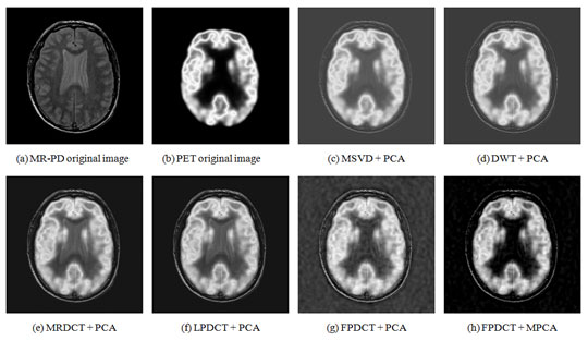 Figure 6 :Visual evaluation of the fusion of MR-PD and PET Medical Images using (a) MR-PD original Image (b) PET original image (c) MSVD+PCA (d) DWT+PCA (e) MRDCT+PCA (f) LPDCT+PCA (g) FPDCT+PCA and (h) FPDCT+MPCA