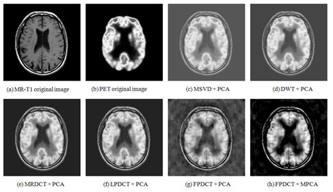Figure 7 :Visual evaluation of the fusion of MR-T1 and PET Medical Images using (a) MR-T1 original Image (b) PET original image (c) MSVD+PCA (d) DWT+PCA (e) MRDCT+PCA (f) LPDCT+PCA (g) FPDCT+PCA and (h) FPDCT+MPCA