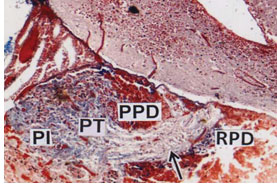 Fig.1. Pituitary gland (PT) attached to the brain. The PT is divided into rostral pars distalis (RPD), proximal pars distalis (PPD) and pars intermedia (PI), (CAHP) x 50.