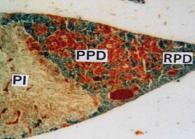 Fig.2. PT showing small RPD, moderate PPD provided with acidophils and basophils and massive PI. (MT) X 100.