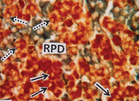 Fig.3. RPD showing tubular arrangement of acid fuchsin stained prolactin cells (PRO) (solid arrows) and dispersed ACTH cells (broken arrows). (MT) x 40