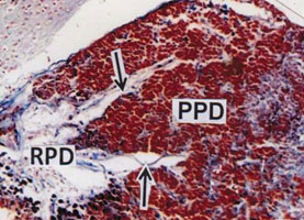 Fig.4. PPD showing densely packed aldehyde fuchsin positive basophilic cells. Innervation of neurohypophyseal axons (arrows) in the PPD. (AF) x 150.