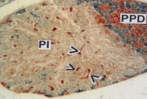 Fig.6. PI showing ramification of neurohypophyseal tract interspersed with neurosecretory materials (arrow heads). (MT) x 100.