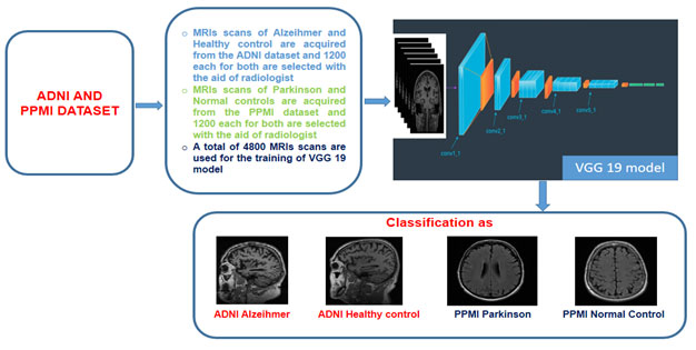 Figure 1. Proposed automated system based on the VGG 19 architecture for the classification of Alzheimer and Parkinson neurodegenerative diseases.