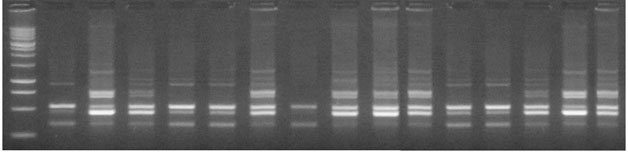 Fig.1 Electrophoretic banding pattern of ISSR primer UBC 880 with 15 S. asoca genotypes