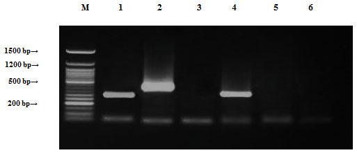 Figure (10): Detection of Staphylococcus saprophyticus antibiotic resistance genes of DNA plasmids using agarose gel electrophoresis of the PCR products. Lane 1, ampR; 2, blashv-12; 3, penA1; 4, ampC1; 5, ampC2; 6, penA2 and M refers to 50 bp DNA ladder.