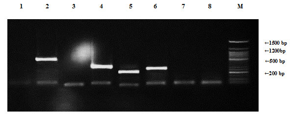 Figure (6): Detection of Enterococcus faecalis antibiotic resistance genes of plasmid DNA using agarose gel electrophoresis of the PCR products. Lane 1, ampR; 2, blashv-12; 3, penA1; 4, ampC1; 5, aac4A-cr; 6, ampC2; 7, penA2; 8, vanR and M refers to 50 bp DNA ladder.