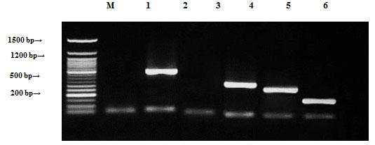 Figure (8): Detection of Staphylococcus aureus antibiotic resistance genes of DNA plasmids using agarose gel electrophoresis of the PCR products. Lane 1, ampR; 2, blashv-12, 3, penA1; 4, ampC1; 5, ampC2; 6, penA2 and M refers to 50 bp DNA ladder.