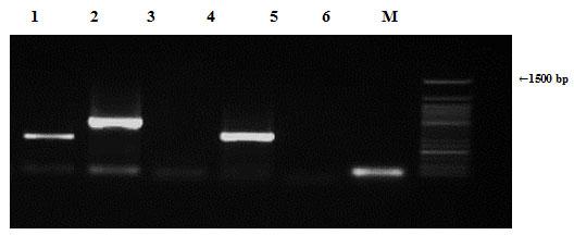 Figure (9): Detection of Staphylococcus aureus antibiotic resistance genes of chromosomal DNA using agarose gel electrophoresis of the PCR products. Lane 1, ampR; 2, blashv-12, 3, penA1; 4, ampC1; 5, ampC2; 6, penA2 and M refers to 50 bp DNA ladder.