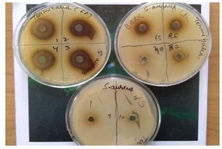 Fig-1. Terminalia fruit pulp showing zones of inhibition against S. aureus.