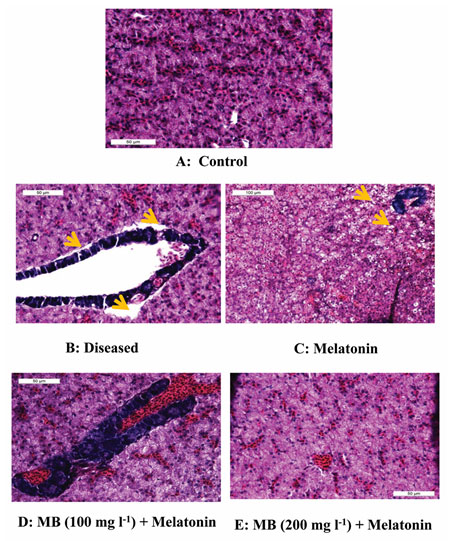 Figure 4: Histopathology of liver tissue from the control, diseased and treated groups.