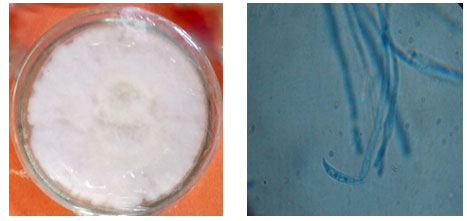 Fig 01: Isolated Pure culture and Microscopic view of Fusarium udum
